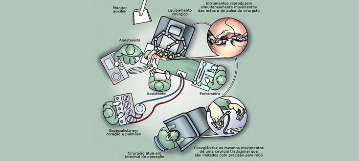 Ilustração que mostra a estrutura de funcionamento de uma cirurgia robótica