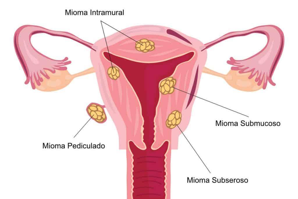 Desenho de um útero acometido por miomas de diferentes tipos.
